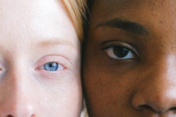 Genetica în alimentația oamenilor, piele alba, piele neagra, cu Nutritie cu Roxi